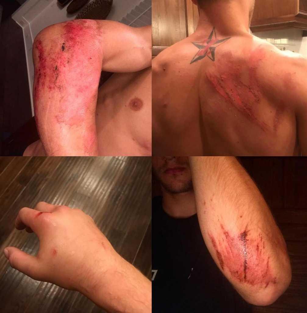 Ken Roczen injured