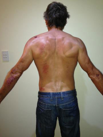 Troy Bayliss shows off some of his bicycle crash injuries