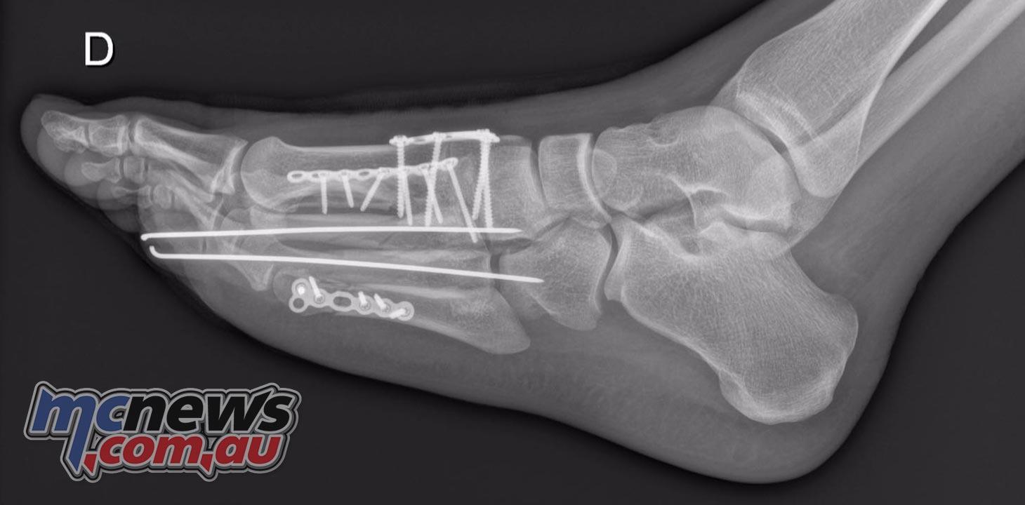 Loris Baz fractures - May 2016
