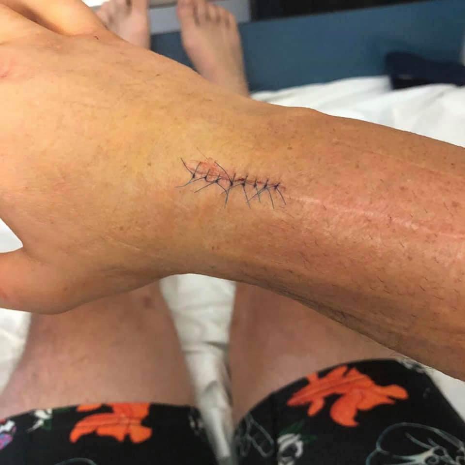 Toby Price surgery